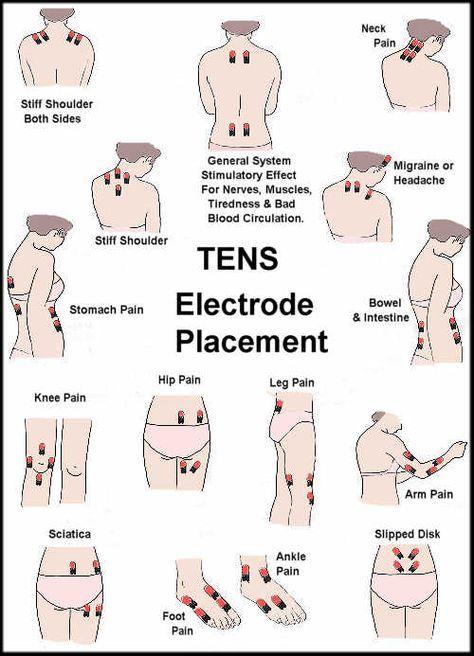 colocacion de electrodos | Terapia Neural | Pinterest | Fisioterapia ...