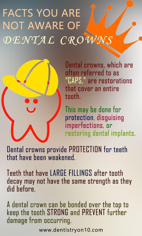 Dental Crowns Mississauga ON Caps For Teeth Dental