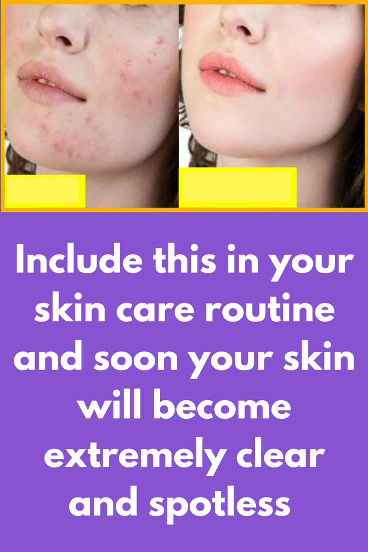 Include This In Your Skin Care Routine And Soon Your Skin Will Become Extremely Clear And Spotlesslearn How Pimple Marks How To Get Rid Of Acne Pimples On Face