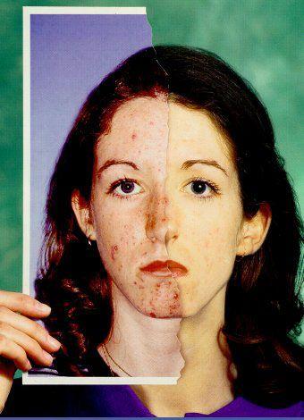 Información acerca del tratamiento del acne y sus causas