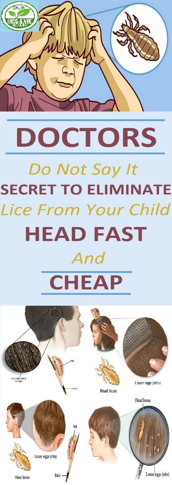 Every time you see some child scratching its head, your ...