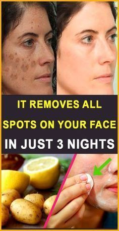 30 Natural Home Remedies to heal Acne Scars overni