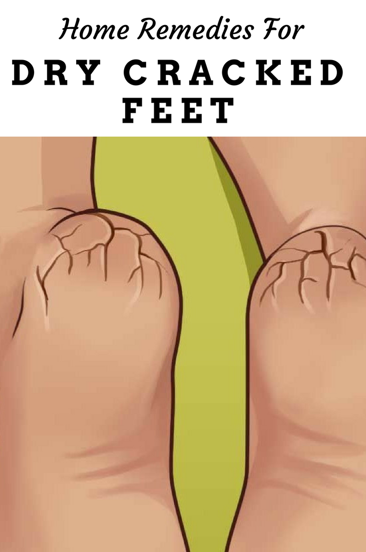 Home Remedies For Dry Cracked Feet Why You Should Soak Your Feet In Milk Helse