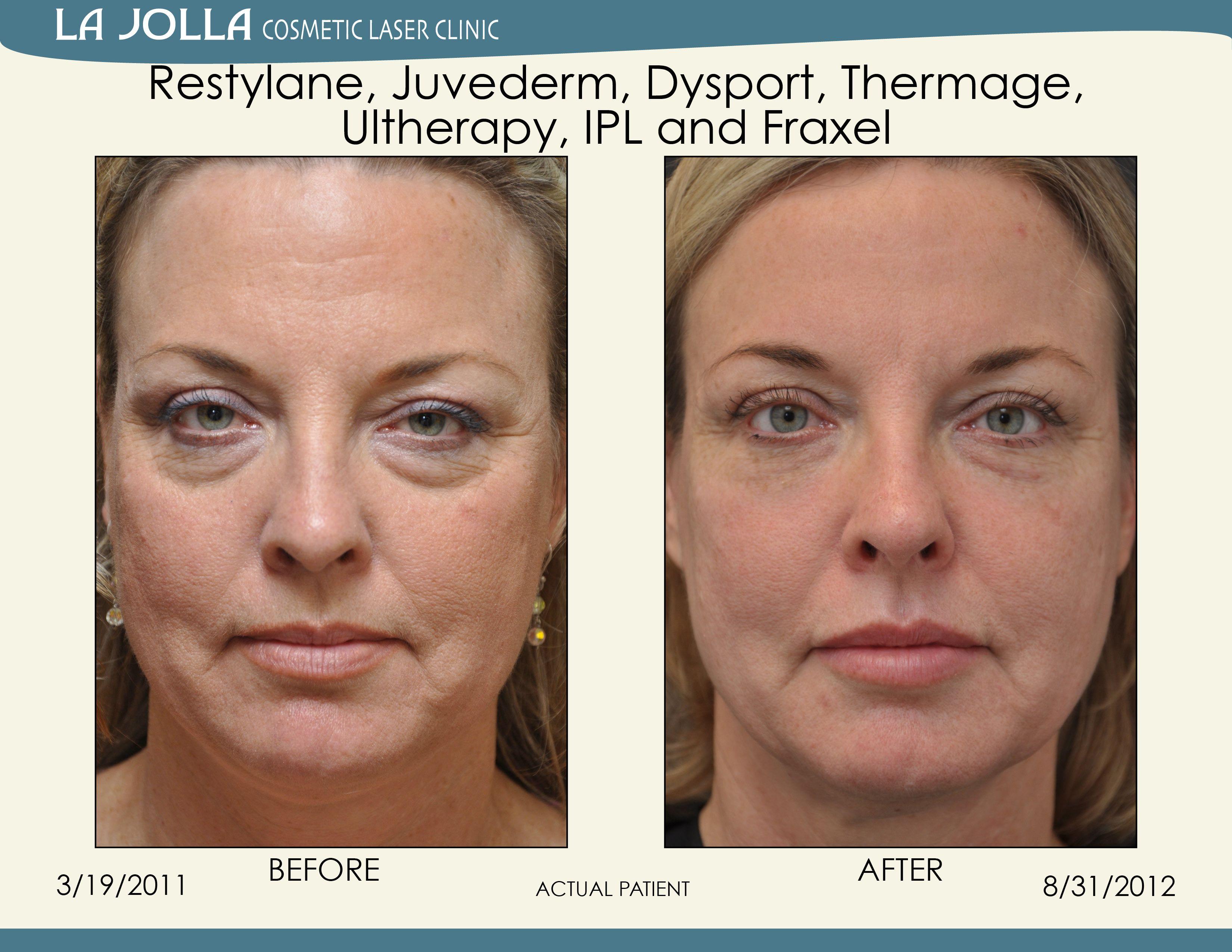 Restyline facial surgery