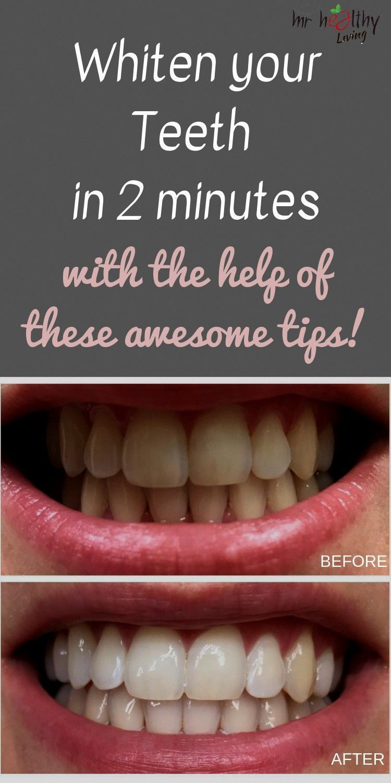 Pin On Self Teeth Whitening