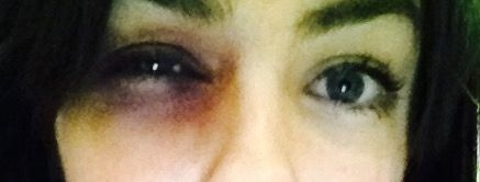 Black eye created using M.A.C eyeshadow for Domestic abuse project
