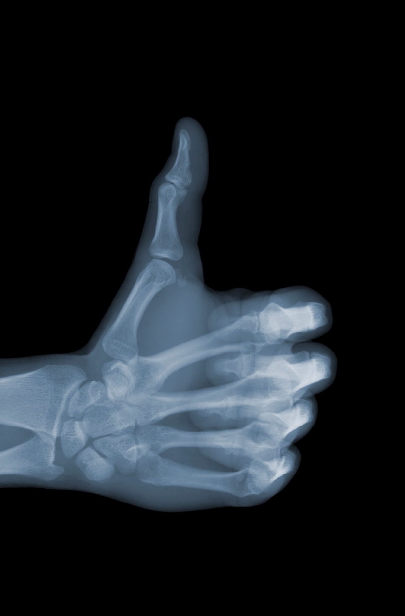 I like / xray nick veasey | All in a day\'s work | Pinterest ...