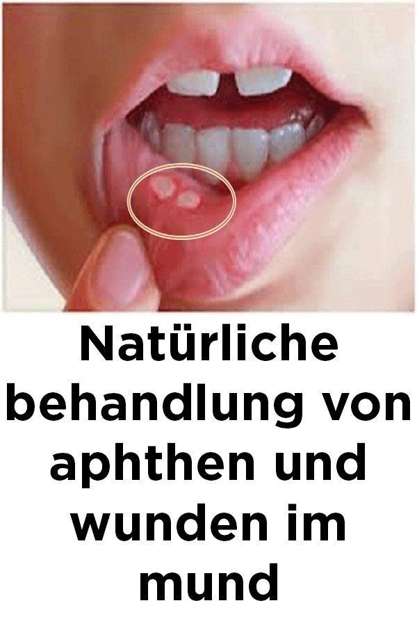 Naturliche Behandlung Von Aphthen Und Wunden Im Mund Behandlung