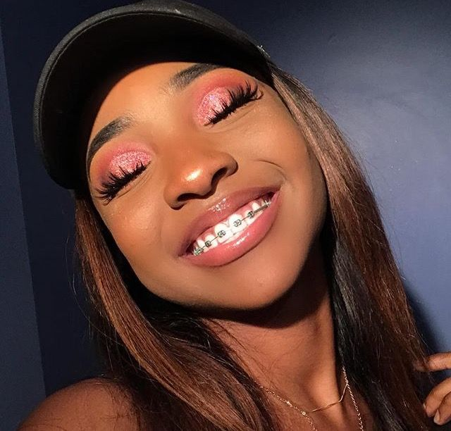 breezybxby | Braces | Makeup, Brace face, Makeup looks