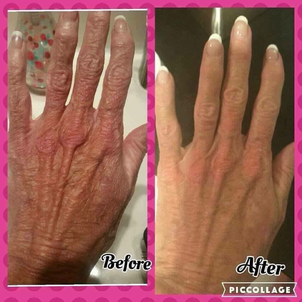 Don T Give Away Your Age Trick Of The Trade Look At The Hands When You Want To Know Someone Hand Treatment Homemade Wrinkle Cream Rodan And Fields Soothe