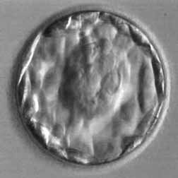 Blastocyst Of High Quality Grade 4aa For Ivf Fertility Fertility