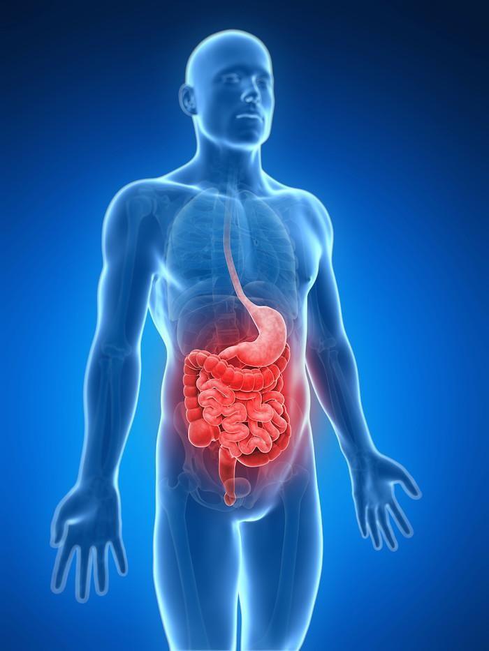 Los síntomas de la obstrucción intestinal | Medicina | Pinterest ...