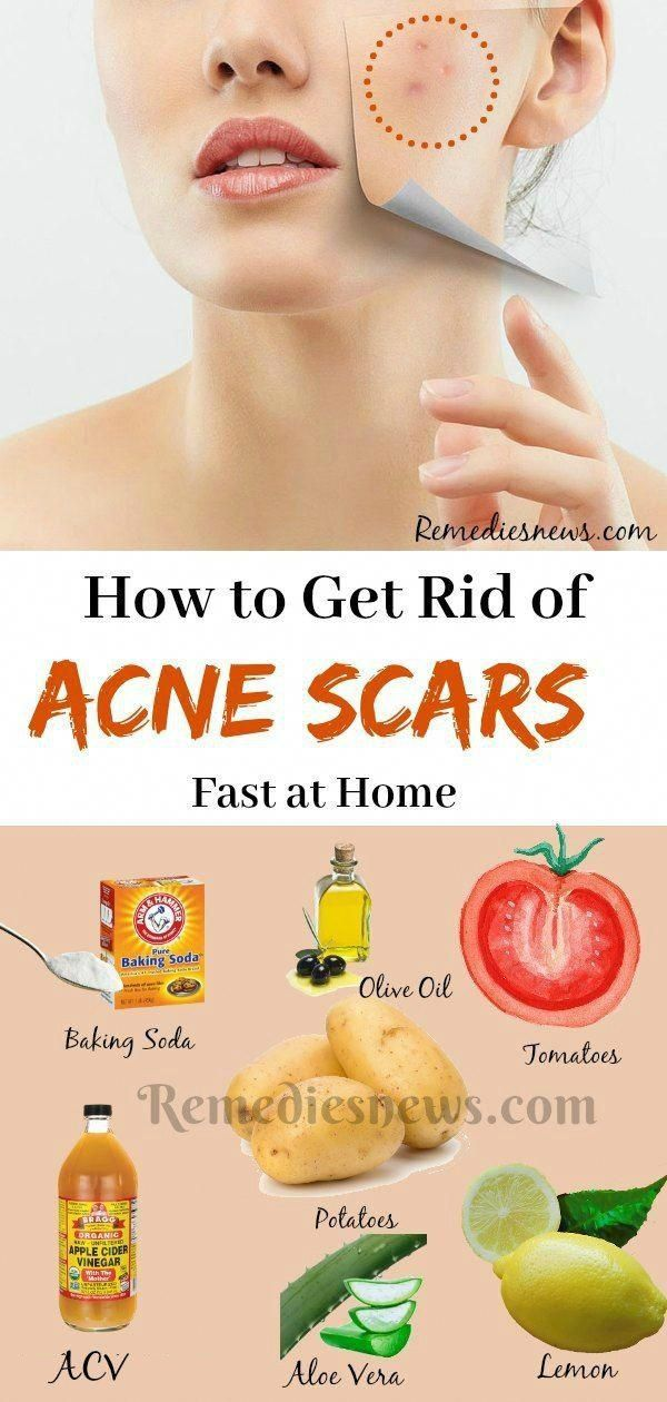 Pin on How to Get Rid of Painful Acne Scars Fast
