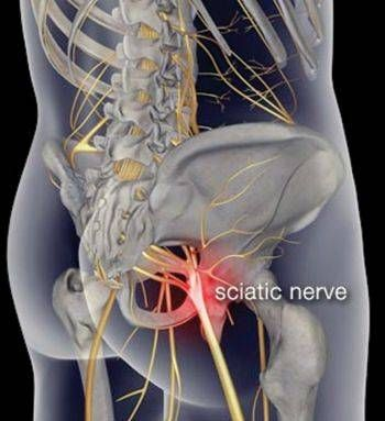 Want to cure that sciatica pain for good? Here\'s the top 5 remedies ...