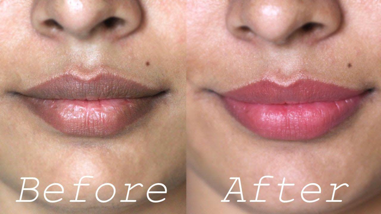 ce309886ed240209dd84326d2a8b1ed4 - How To Get Rid Of Dark Lips From Smoking Weed