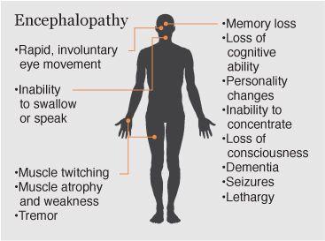 symptoms of encephalopathy | body of work | pinterest, Skeleton