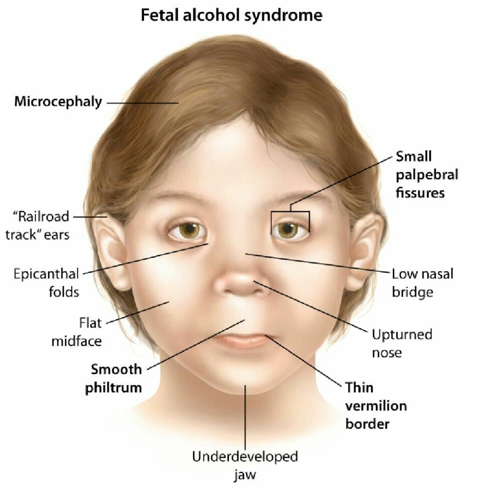 Fetal Alcohol Syndrome Note 1 Ntd Occur But No Low Ear