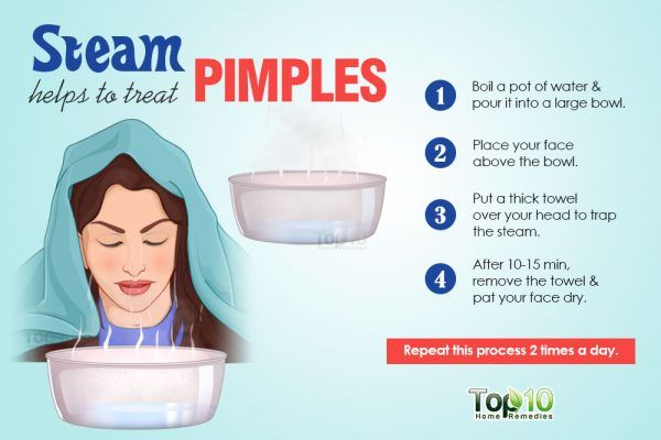 instant home remedy for acne