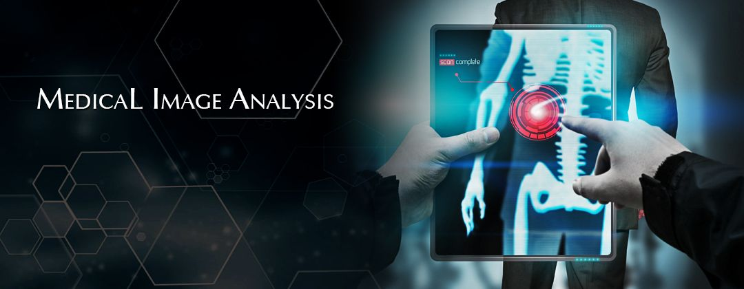 Imagini Pentru Medical Imaging Analysis Hd Medical Imaging