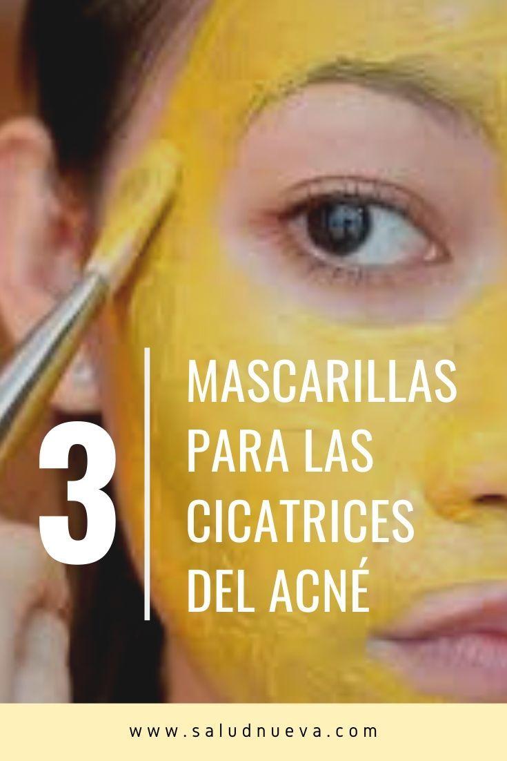 3 increíbles mascarillas de curcuma para el acne