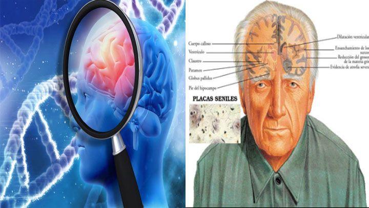 """Según la Fundación Pasqual Maragal, """"somos nuestro cerebro"""". Es el centro de nuestra personalidad y el Alzheimer nos la arrebata. Es un cerebro lesionado..."""