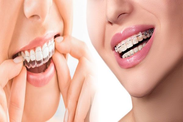 Lingual Braces Vs Clear Aligners In India Are You Unhappy About The Available Options In Braces Well It I Lingual Braces Orthodontic Treatment Clear Aligners