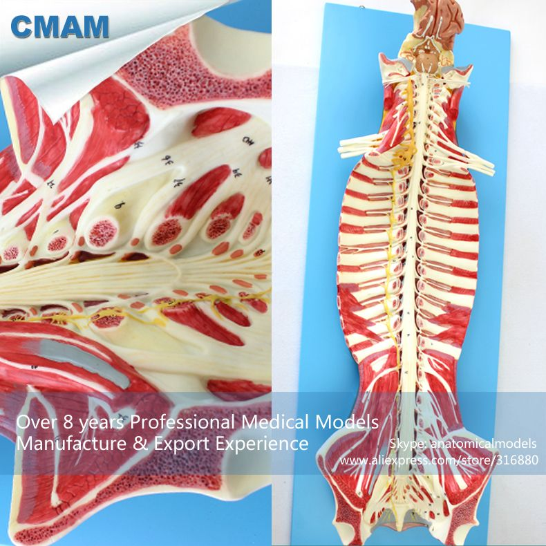 Cmam Muscle17 Human Spinal Cord In The Spinal Canal Anatomy Model