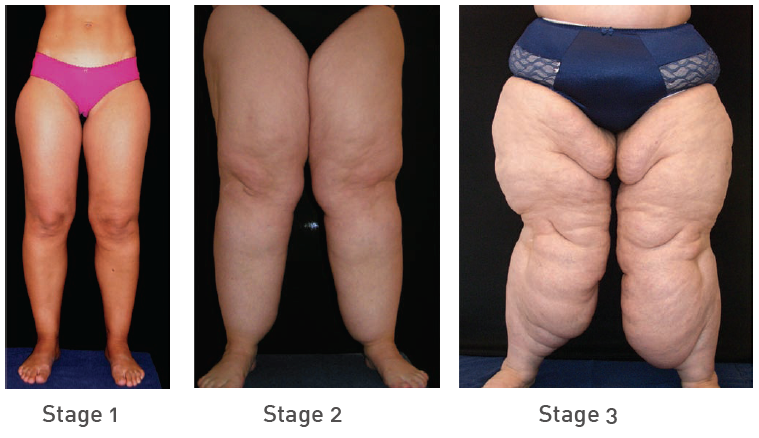 Living with lipedema hello everyone i thought i would share my living with lipedema hello everyone i thought i would share my experience living with lipedema loose weightlegsgoogle ccuart Choice Image