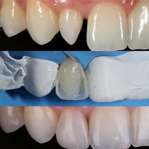 Dentaltown Peg Lateral Is The Dental Term Use To Describe Small Or Underformed Lateral Incisors It Is A Surprising Dental Dental Assistant Teeth Treatment