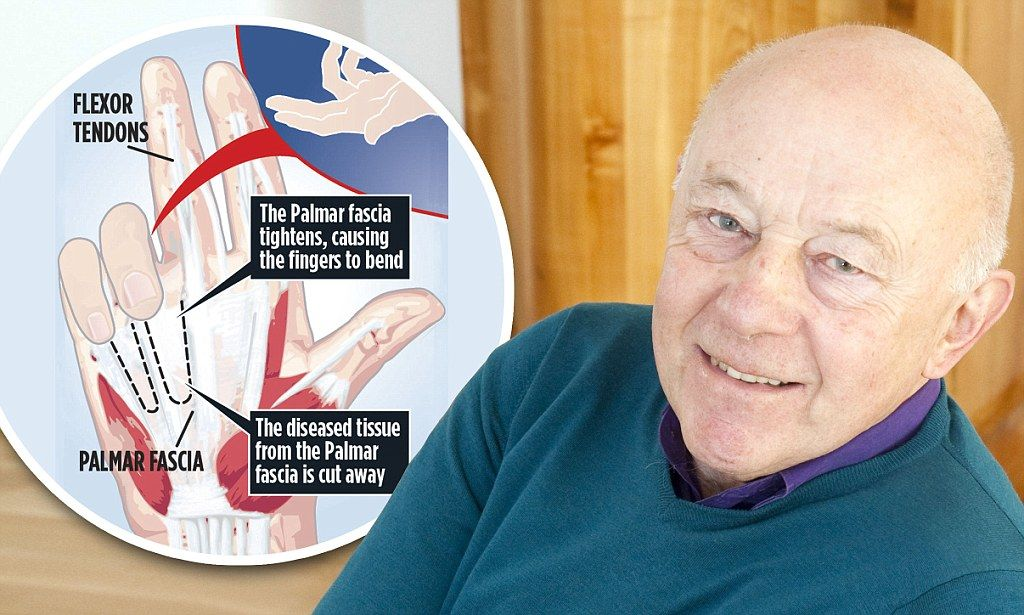 The Mail on Sunday - Dupuytren's contracture with Sir John Tusa