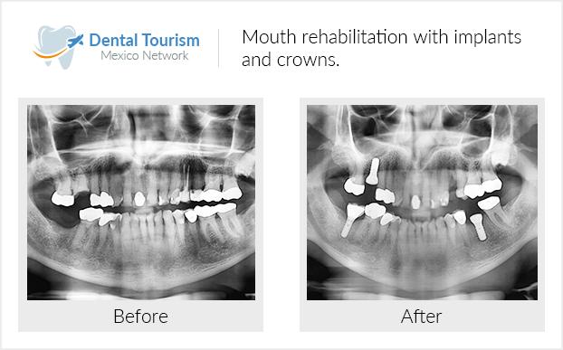 #oralhealtheducationIll Dental Implants Bridges #toothsweetgirl #sensitiveteeth