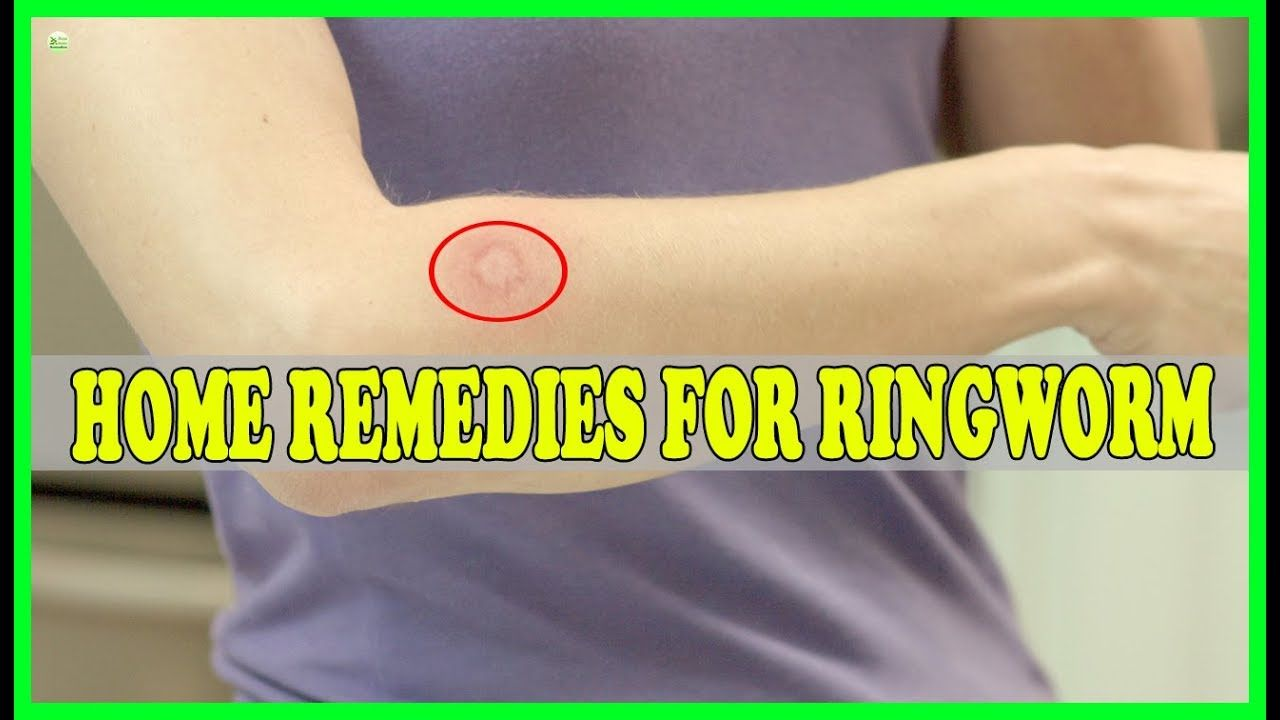 9 Effective Natural Home Remedies For Ringworm Best Home