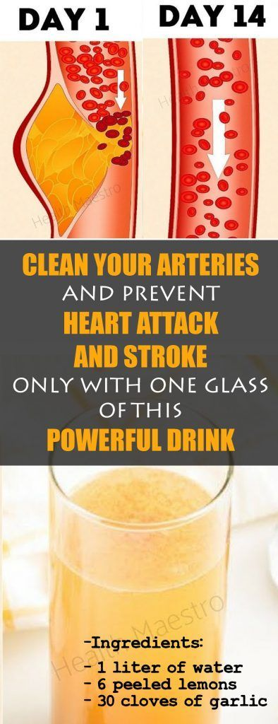 Your Arteries and Prevent Heart Attack and Stroke Only With One Glass of This Powerful Drink