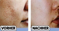 Photo of Remove acne scars forever