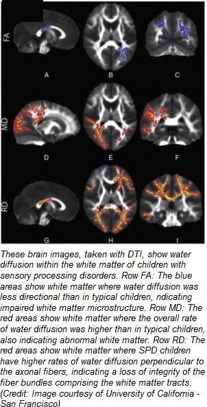 Breakthrough Study Reveals Biological >> Breakthrough Study Reveals Biological Basis For Sensory Processing