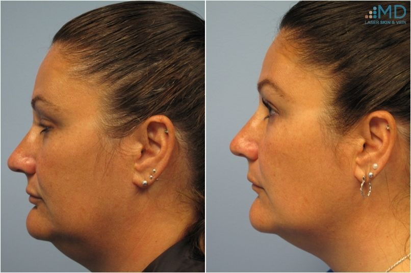 Result Photos from Maryland Laser Skin and Vein. Tightening saggy skin for a beautiful facial contour.
