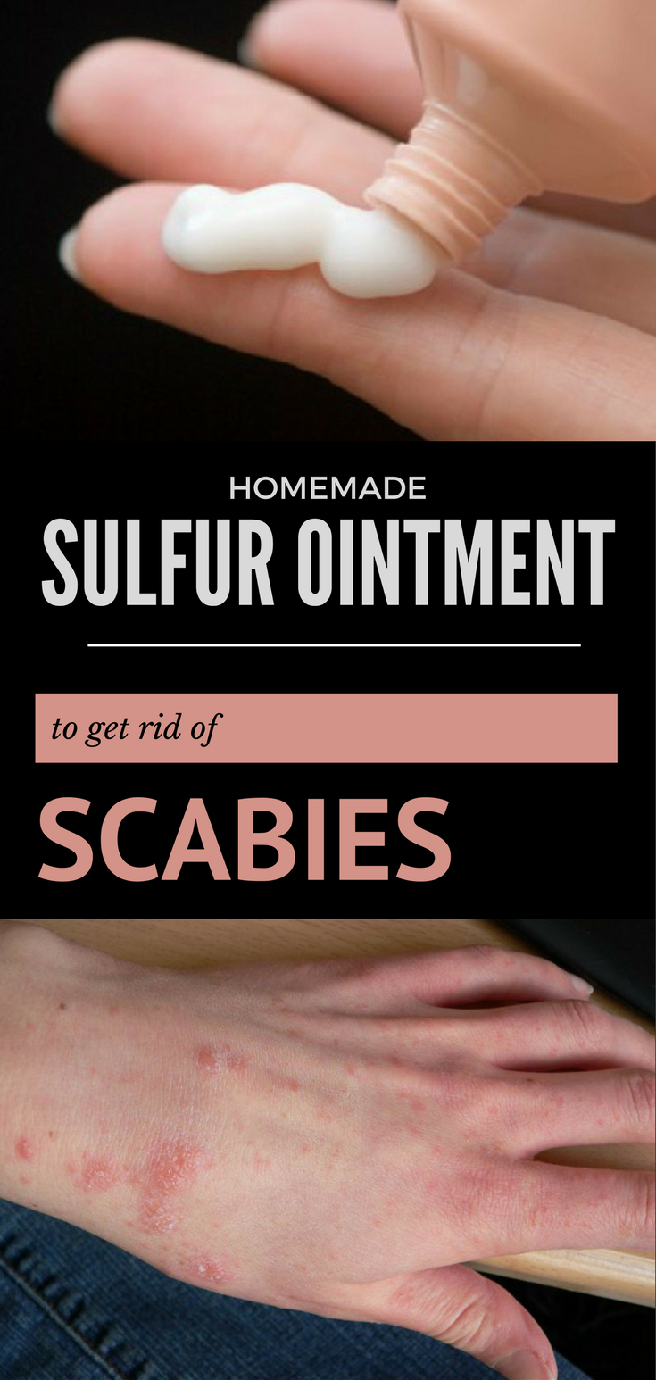 The Best Homemade Sulfur Ointment To Get Rid Of Scabies Sulphur Ointment Scabies Home Remedies For Scabies
