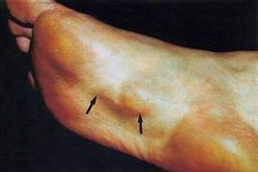 Natural Treatment For Fibromatosis