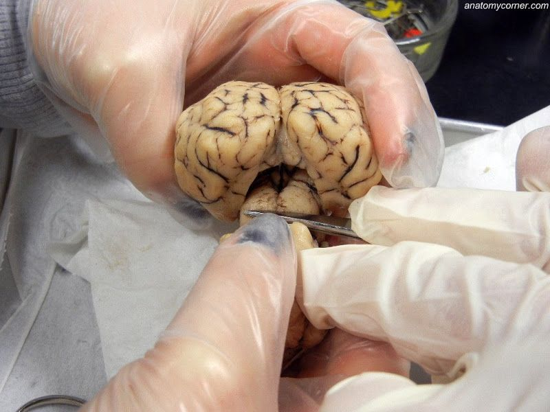 pineal gland | Dissection, Sheep, Brain