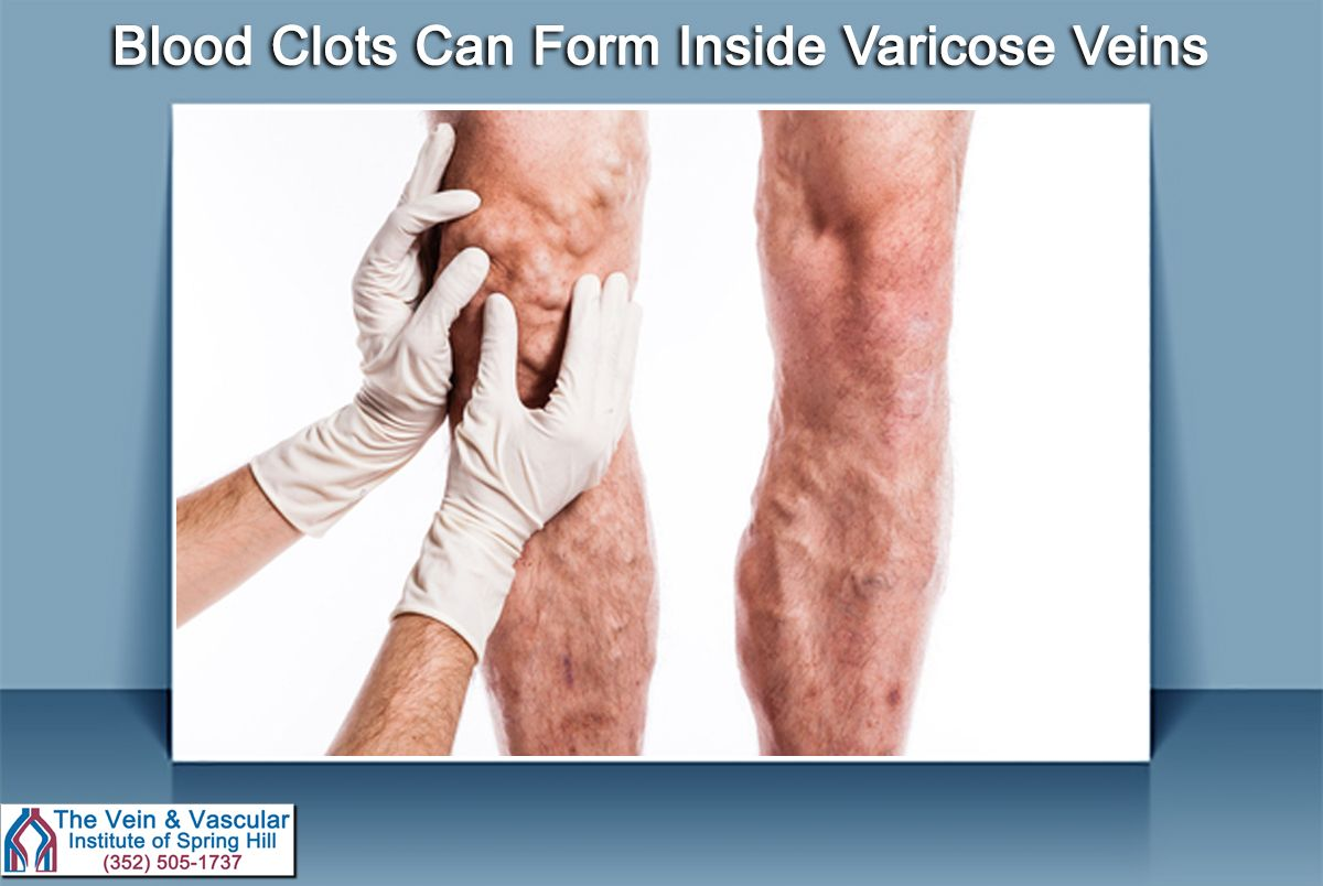Blood clots can form inside varicose veins. If a blood clot forms ...