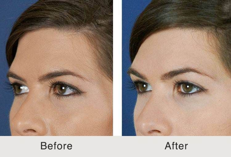 Liquid Brow Lift - Fillers are now being used to lift brows! Contact Lumiere Dermatology today to find out more!