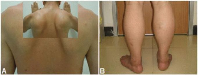 Unique Signs In Patients With Limb Girdle Muscular Dystrophy A