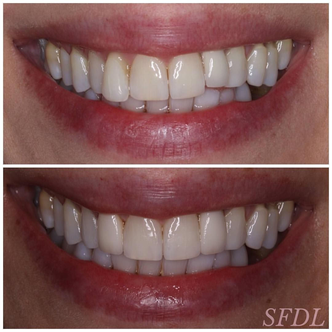 teeth whitening class houston