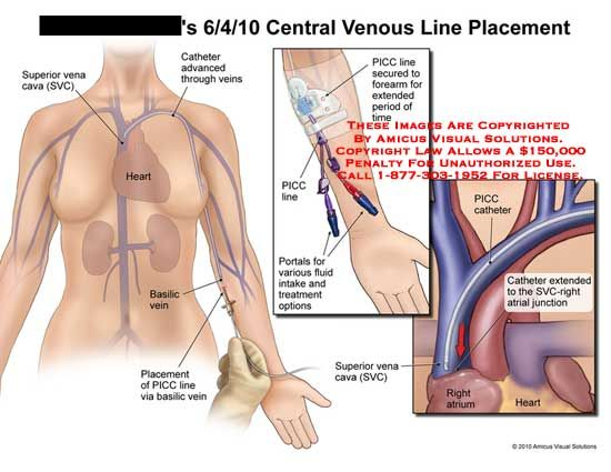 central lines - Google Search | MEDICINA <3 | Pinterest ...