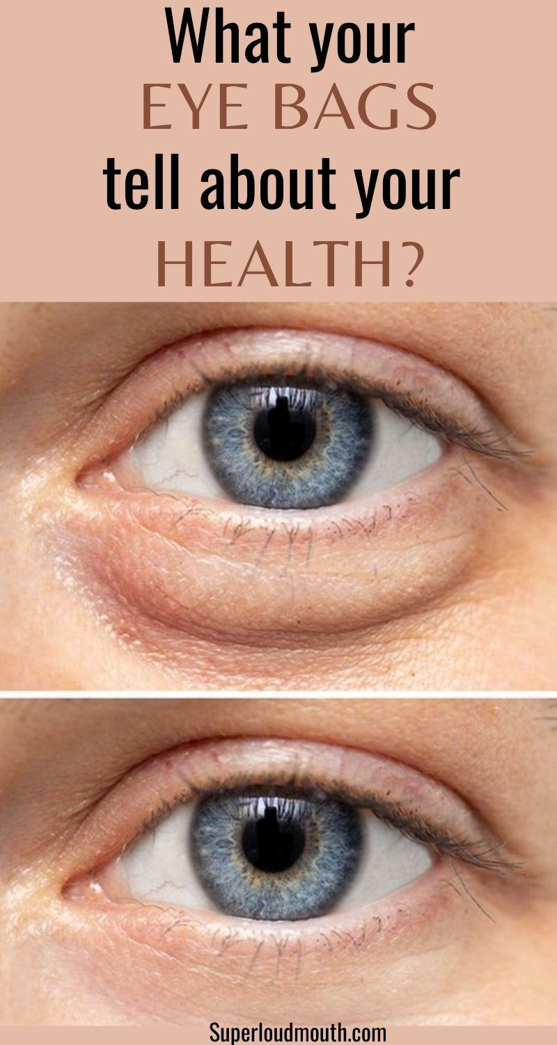 What your Eye bags tell about your health? How to get rid ...