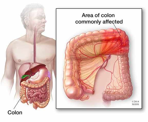 illustration of abdomin highlighting colon and ischemic colitis