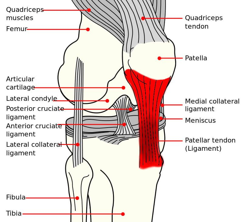 Patellar Tendonitis Jumpers Knee Causes Treatment Prevention
