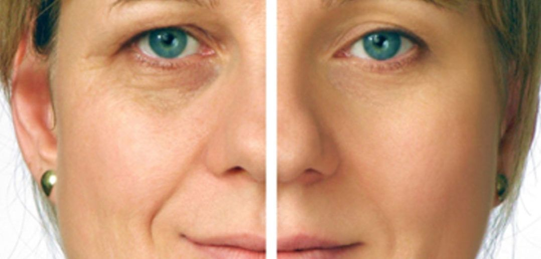 Do it yourself face lift face lifting dips and recipes do it yourself face lift solutioingenieria Choice Image