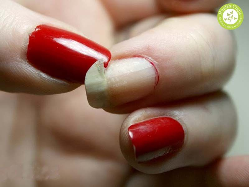 How to fix (Repair) a broken nail? If you are facing problem with ...