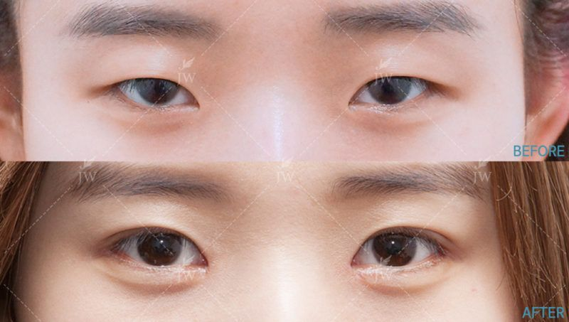 Before After Eye Surgery At Jw Clinic In Seoul Korea Eye